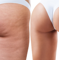 Anti Cellulite Machines