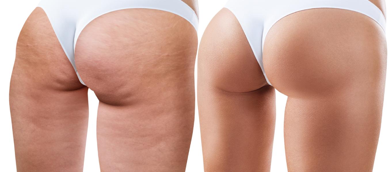 Anti Cellulite Machines