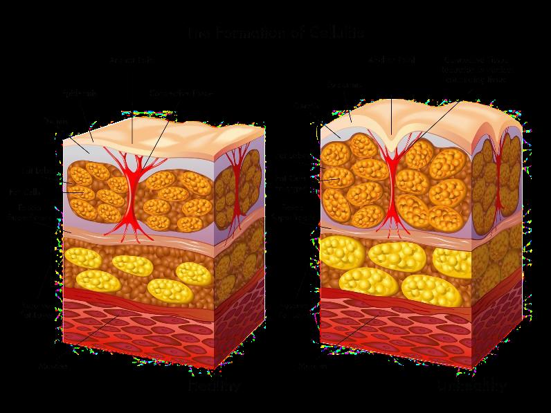 Cellulite Removal Fat Cells Comparison